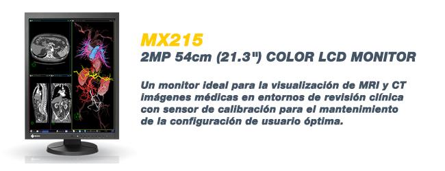 MX215